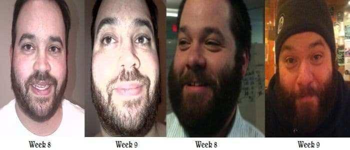 beard growth pictures by week 1