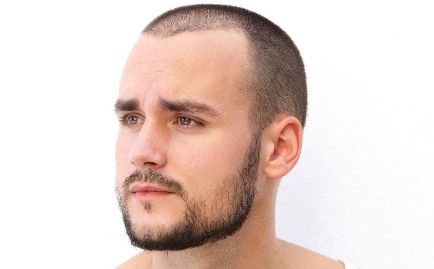 how to fill in bald spots on beard 1