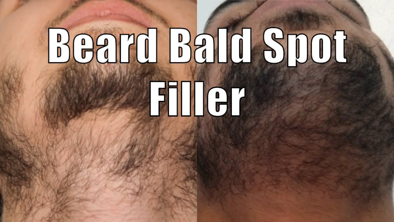 how to get rid of bald spots in beard 1