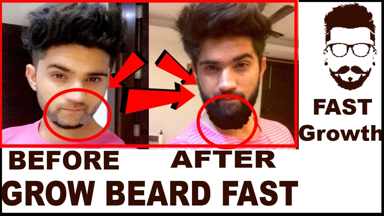 how to get your beard to grow faster 1