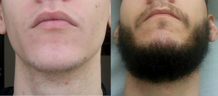 Minoxidil beard permanent - FACIAL HAIRSTYLES
