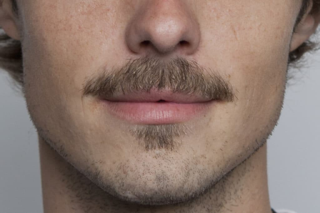 mustache trimming with beard 1