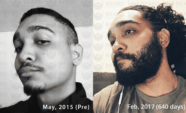 rogaine before and after beard 1