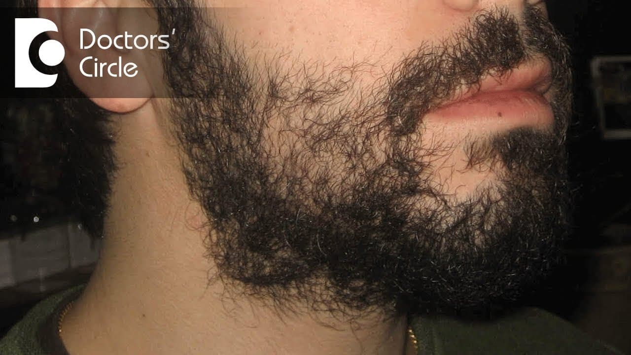 bald patches in beard photo - 1