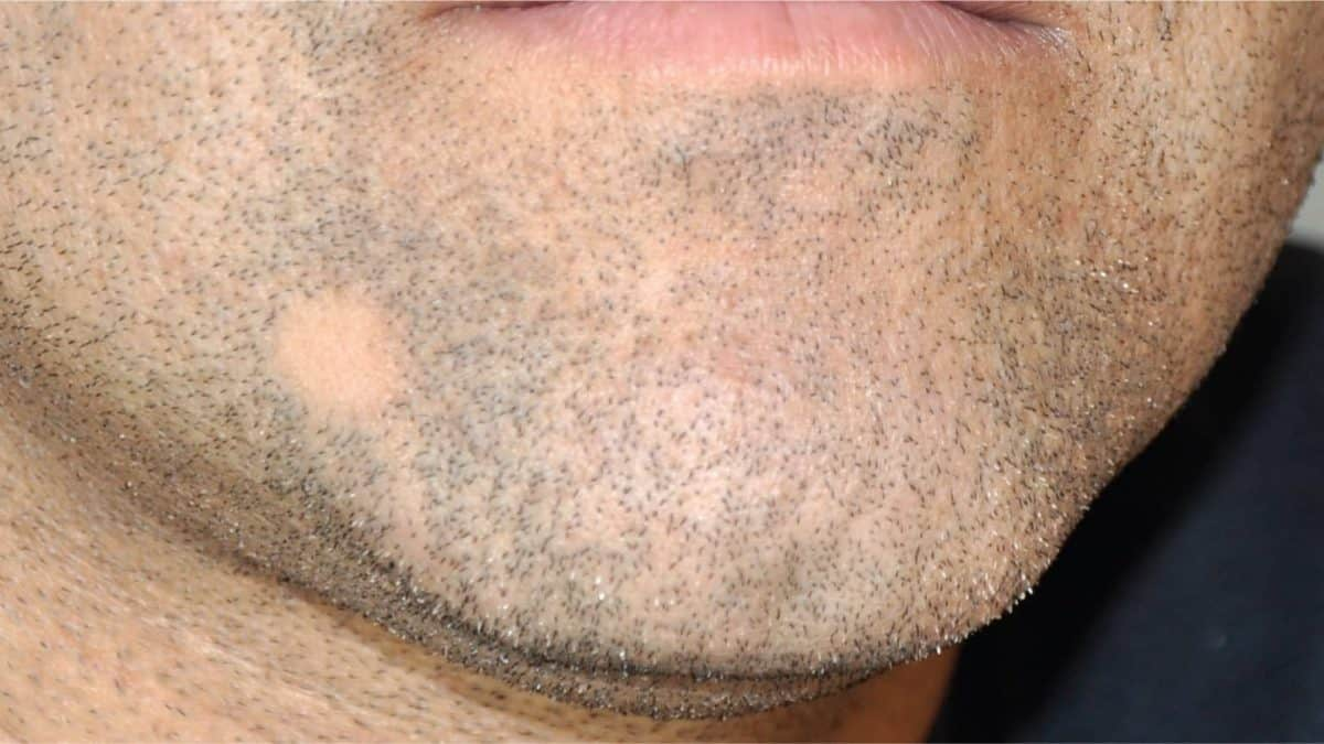 bald spot in beard under chin photo - 1