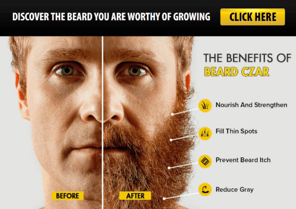 beard czar before and after photo - 1