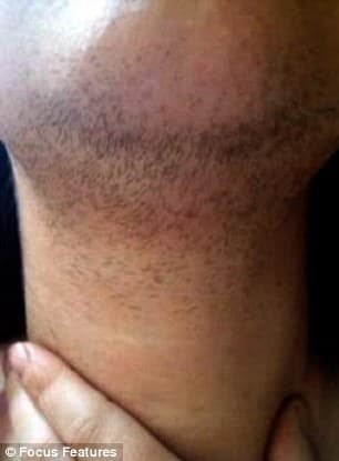 beard laser hair removal photo - 1