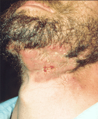 beard ringworm photo - 1