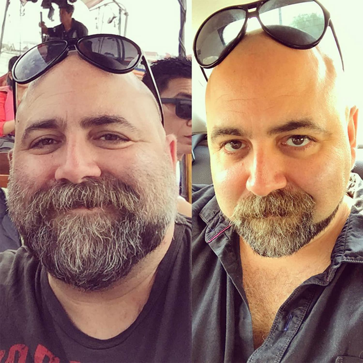 before after beard photo - 1