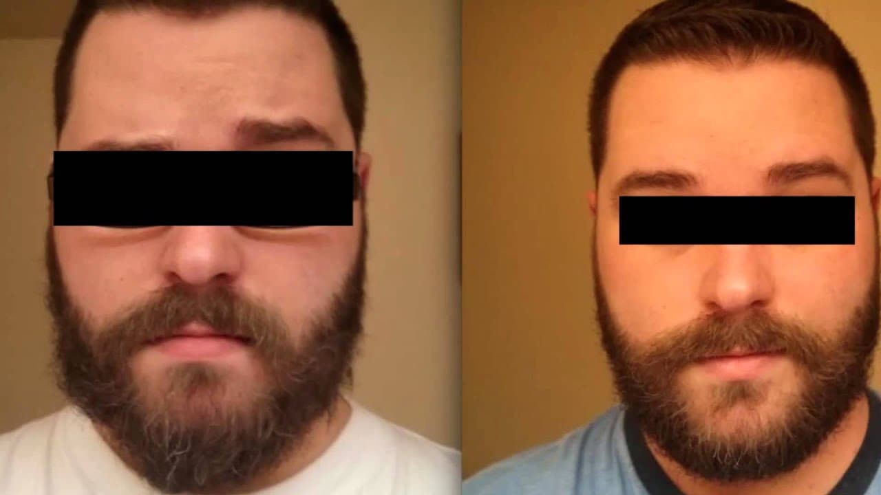 honest amish beard balm before and after photo - 1