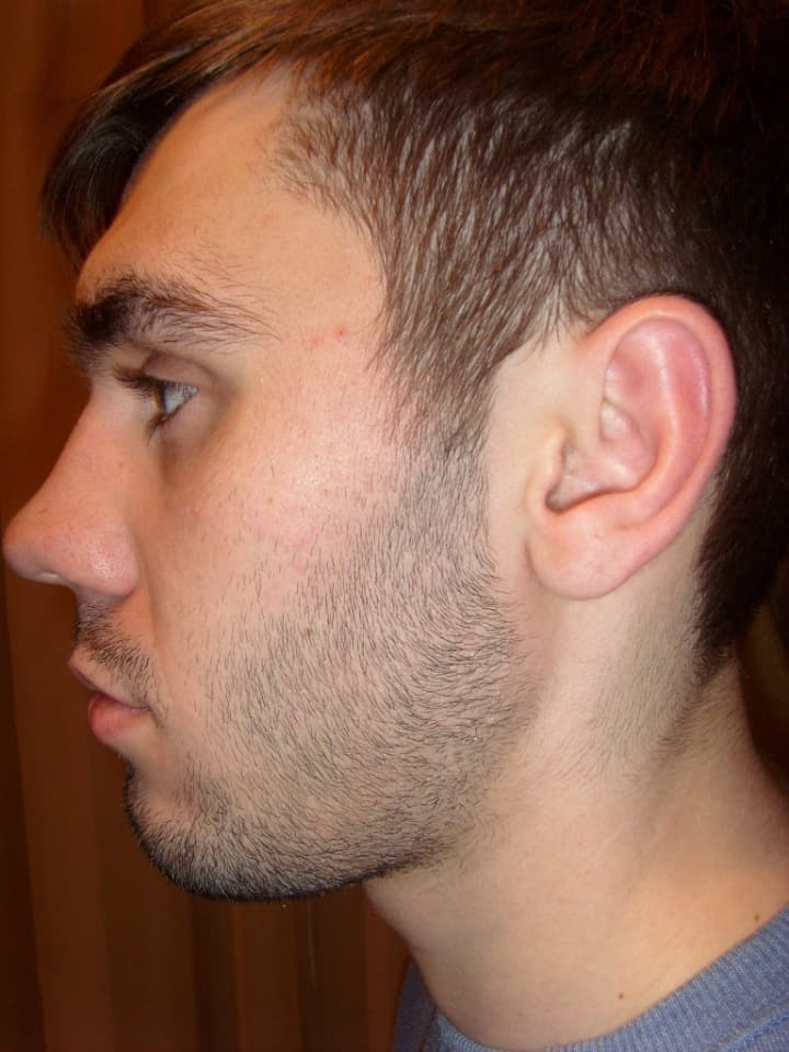 how to grow hair between mustache and beard photo - 1