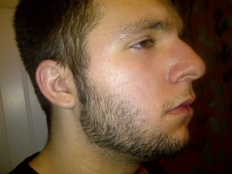 mustache wont connect to beard on one side photo - 1