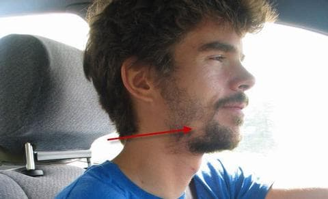 patchy beard causes photo - 1