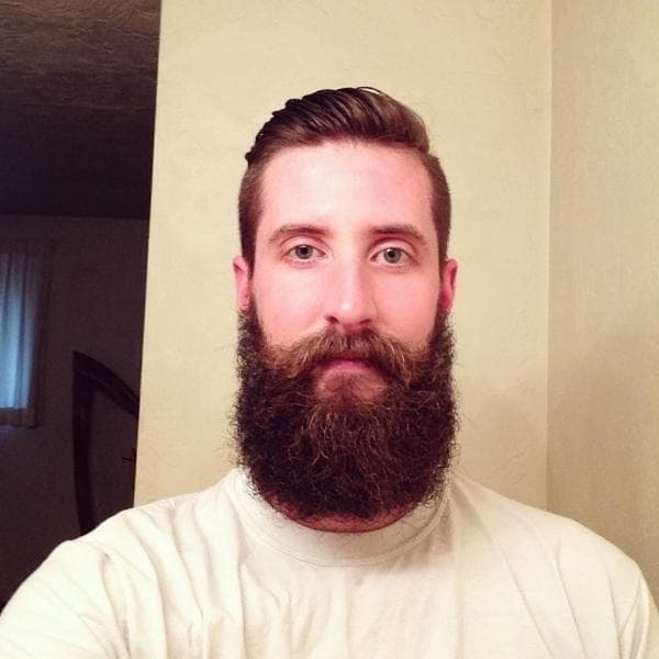 patchy beard solution photo - 1