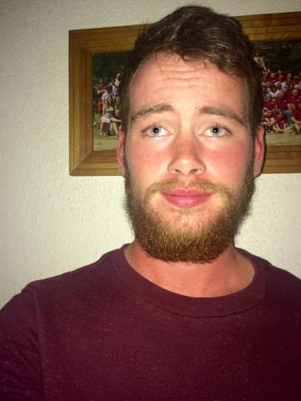 patchy beard success stories photo - 1