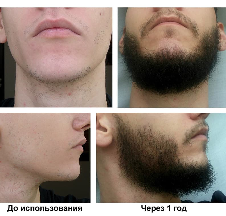 rogaine beard results photo - 1