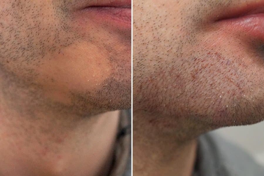beard transplant before after 1