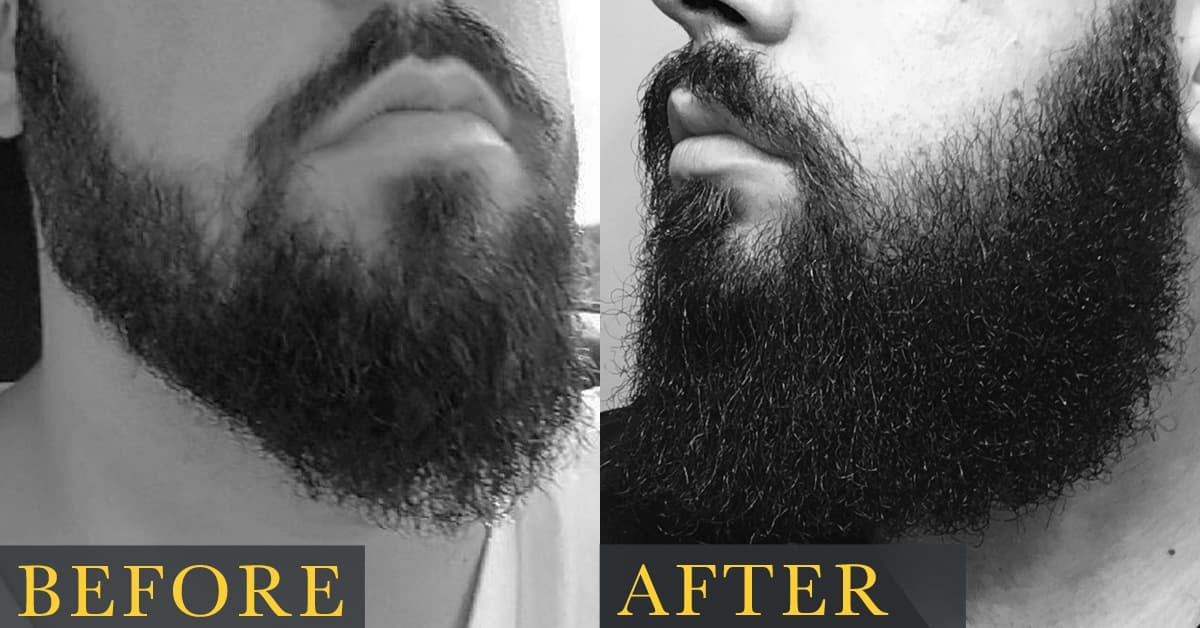 how to grow a full thick beard 1