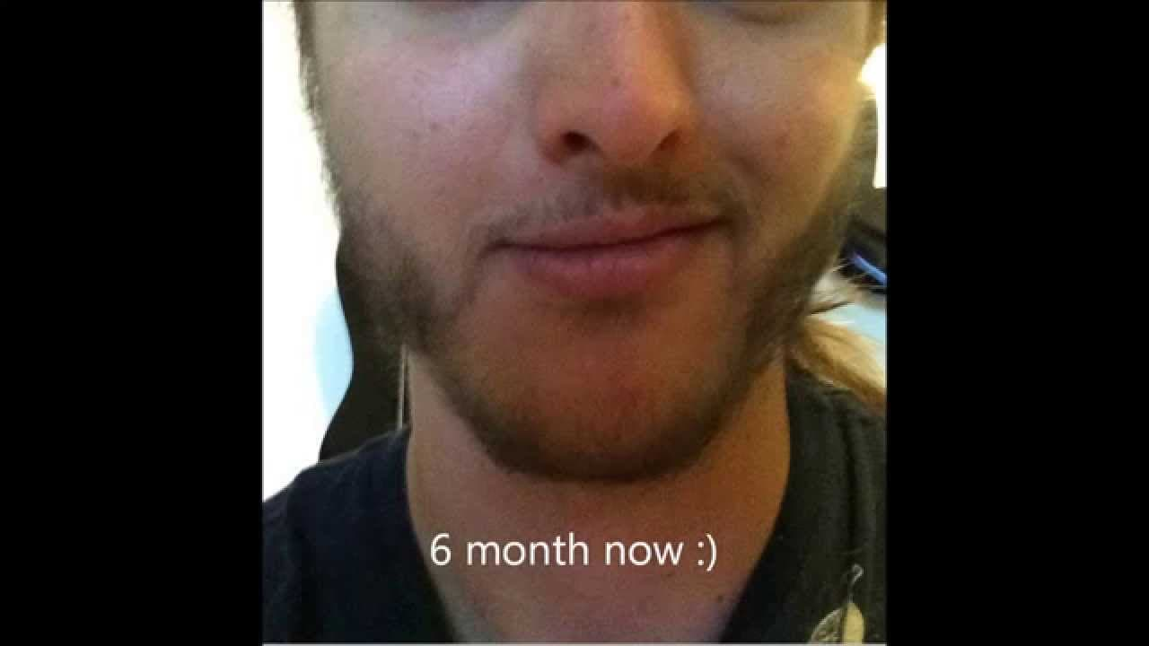 minoxidil before and after beard 1