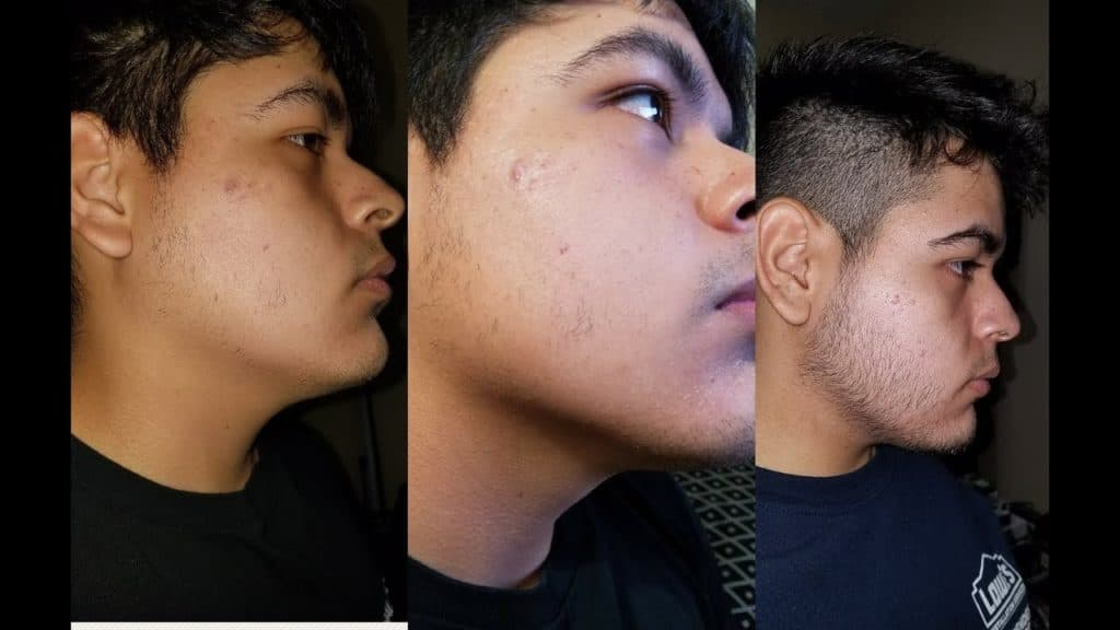 rogaine for beard before and after 1