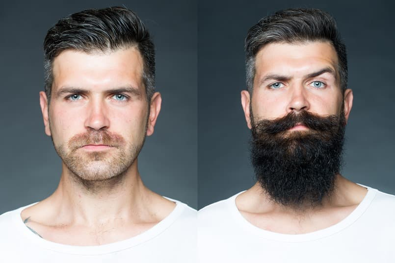 will i ever be able to grow a beard 1