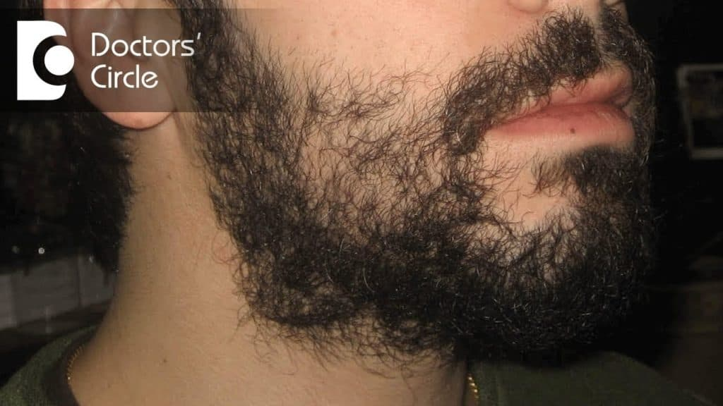 bald patches in beard 1
