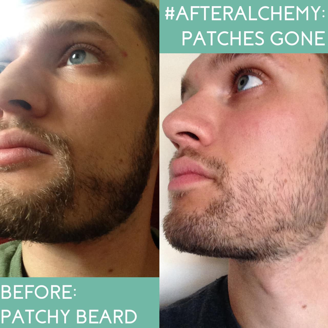castor oil for beard before and after 1