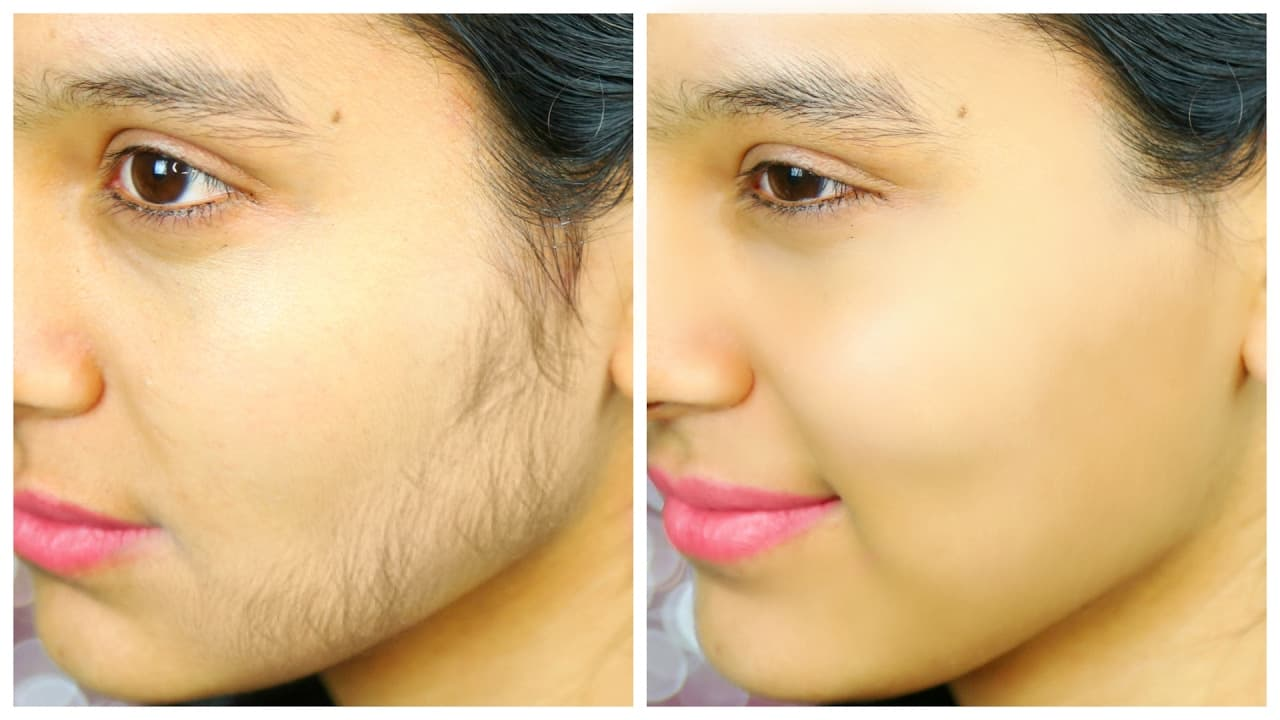 how to remove beard permanently at home 1
