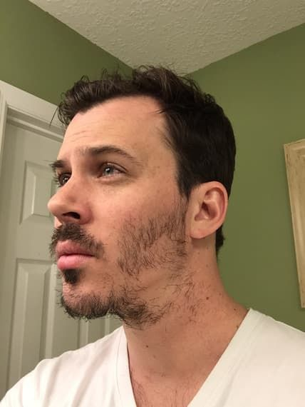 patchy beard growth time lapse 1