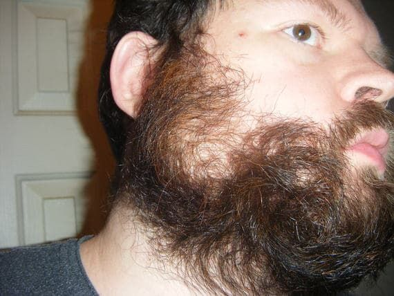 flaking skin in beard and mustache 1